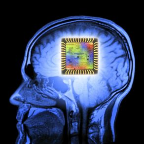 brain-implant-997202